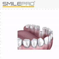 Top Dental Implants in Pune  by smilepro